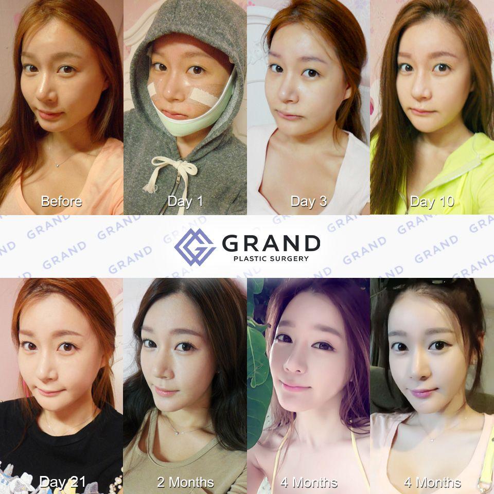 Adv Genioplasty With Images Plastic Surgery Korea Surgery