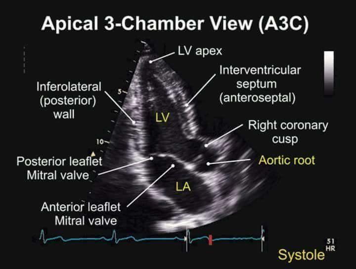 Apical 3 Chamber View TEE | Cardiac surgery | Pinterest | Cardiac ...