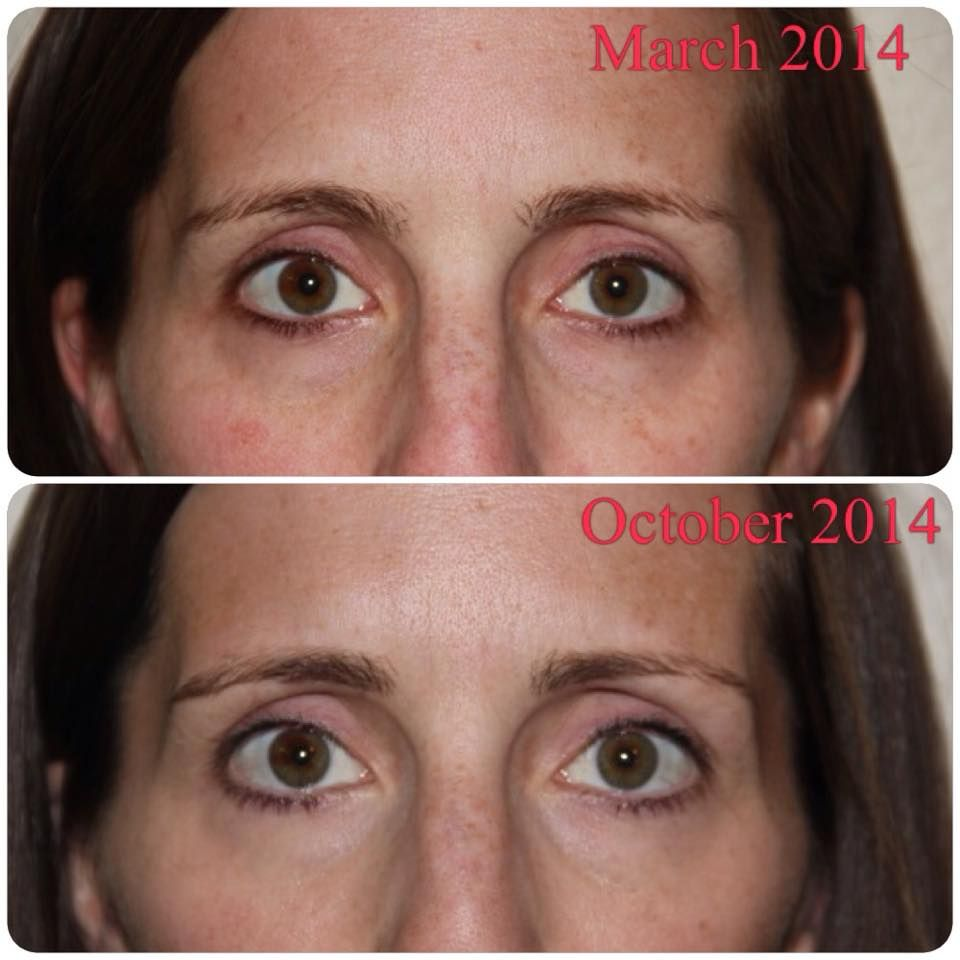Anne Moreland before and after acute care