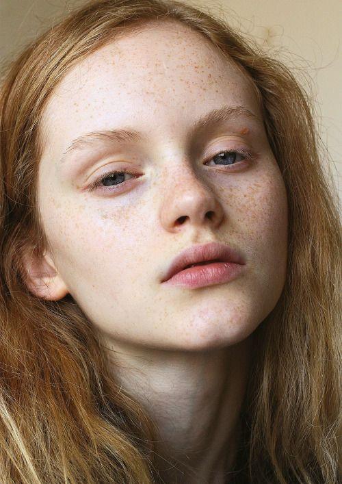 alfadolls:  Emma Laird