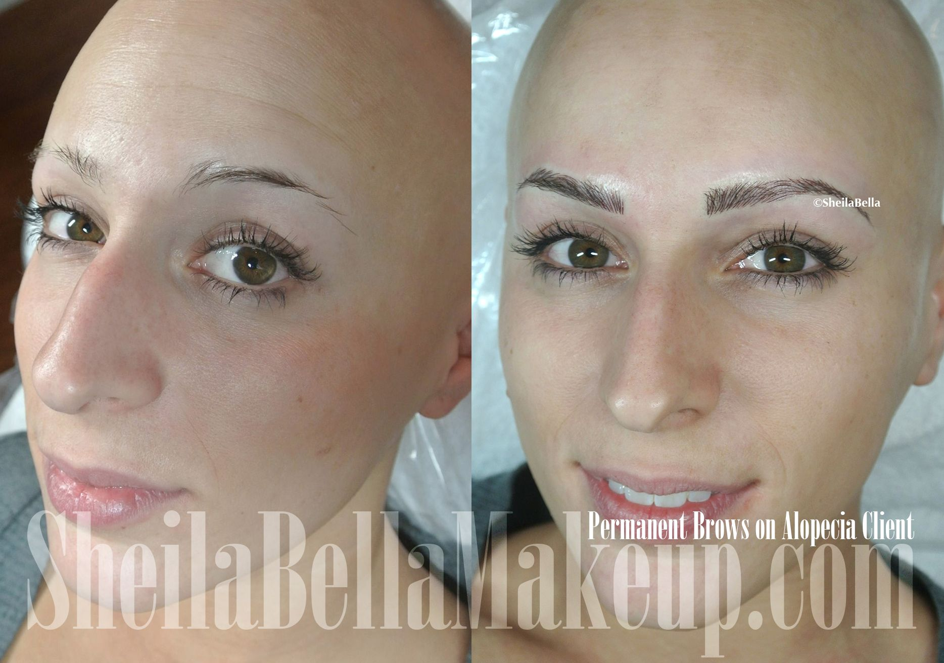 Alopecia No Problem She Got Her Natural Looking Brows Only At