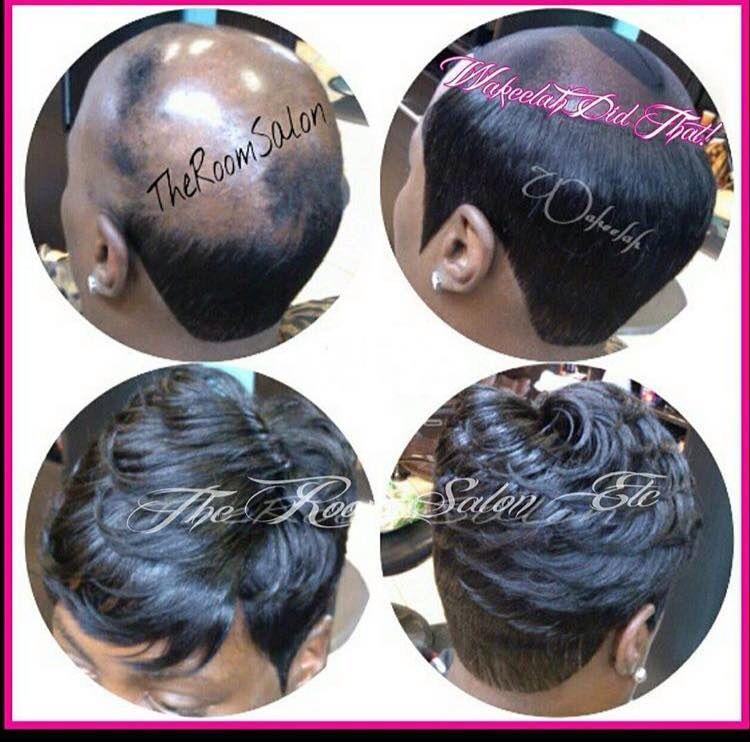 Alopecia quick weave … | Pinteres…