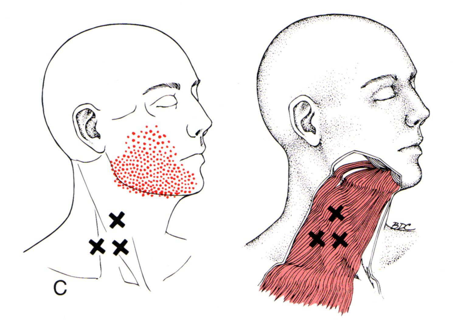 Platysma the trigger point referred pain guide health platysma trigger point diagram pain patterns and related medical symptoms the myofascial pain pattern has pain locations that are displayed in red and pooptronica