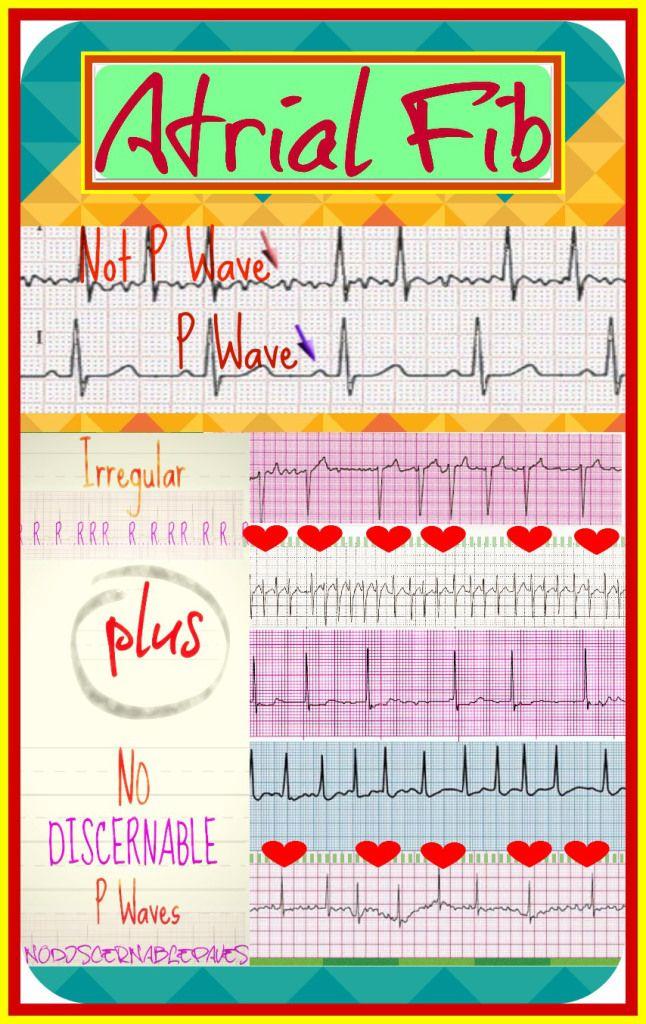 Atrial Fib Rcis Pinterest Cardiac Nursing Icu Nursing And
