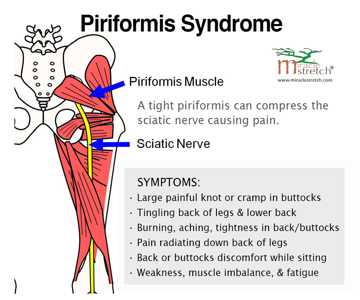 Learn the Symptoms of Piriformis Syndrome. Get relief with focused ...
