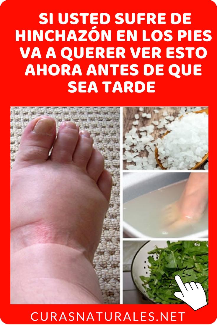 El remedios hinchazón embarazo durante del pie