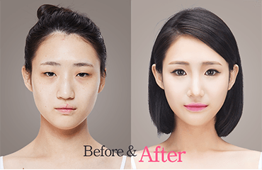 The Line Clinic Is One Of The Best Plastic Surgery Experts In Korea They Have Done A Number Of Plastic Surgery Combination Skin Care Beauty Skin Care Routine