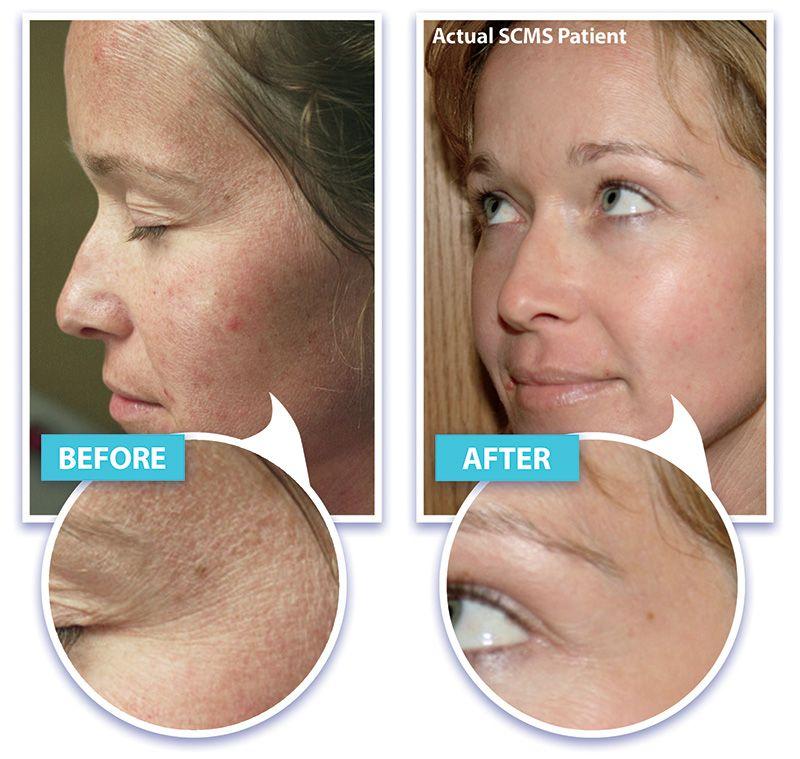 Laser Skin Rejuvenation Wrinkle Removal Skin Tightening With Laser Laser Skin Rejuvenation Laser Skin Skin Rejuvenation