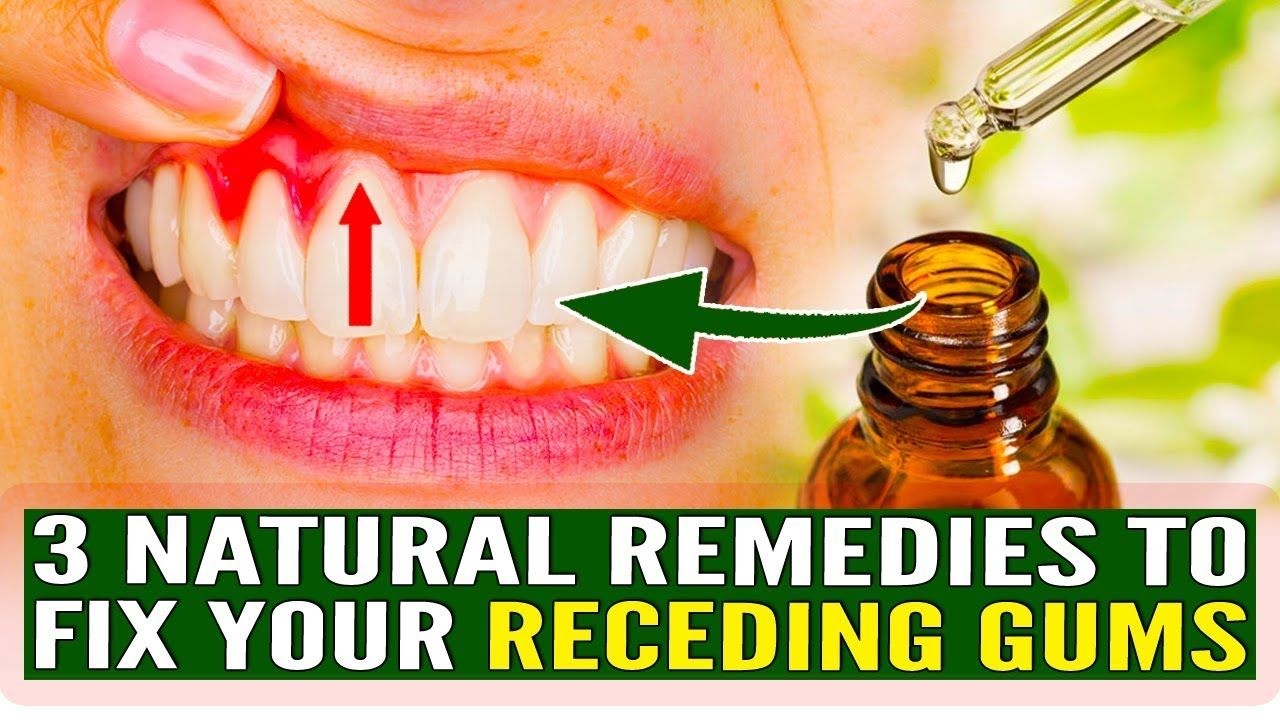 Gingival recession these 3 natural remedies will fix your