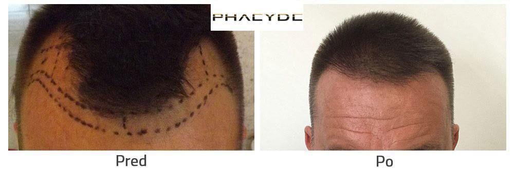 Transplantácia vlasov pred po následok  730704bcf70