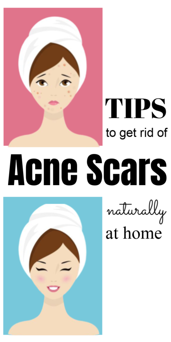 Pin On Acne Scars Products