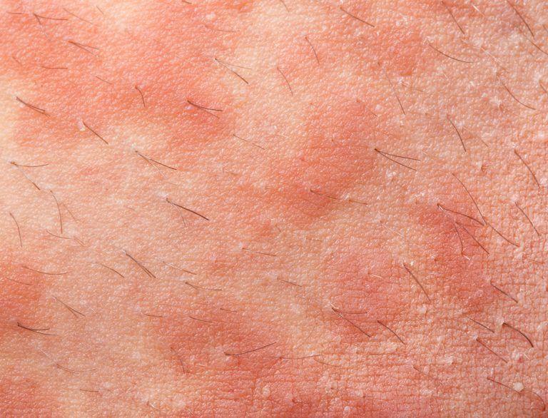 Tipos de erupciones en la piel