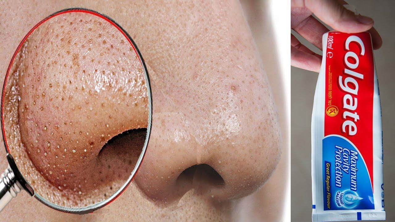 Swelling under nose piercing  Do This to Remove Blackheads From Your Nose Instantly  Blackheads nose