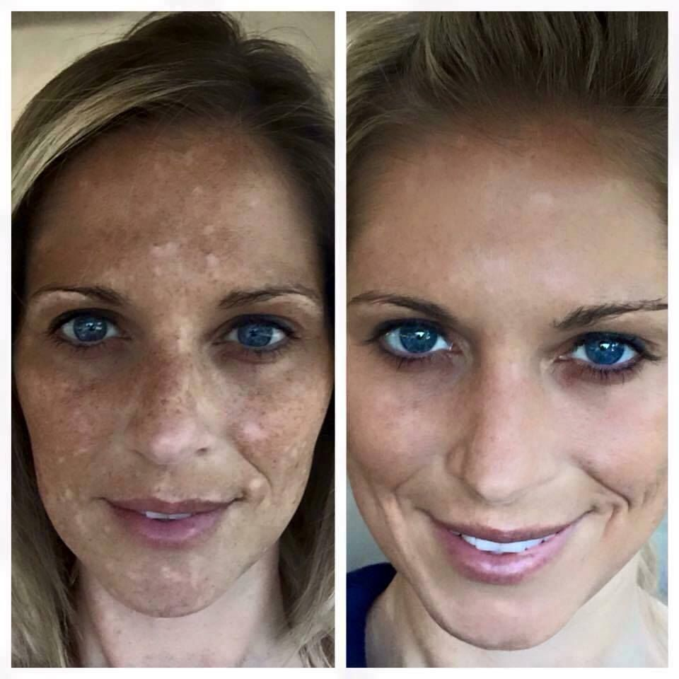 Hypopigmentation Or Hyperpigmentation Bumming You Out Check Out