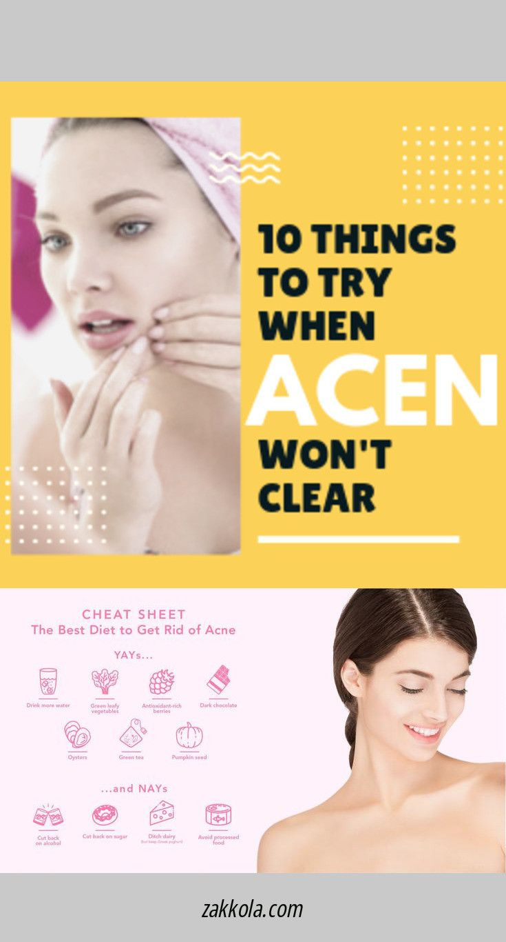 Find more information on acne. Check the webpage to find out more