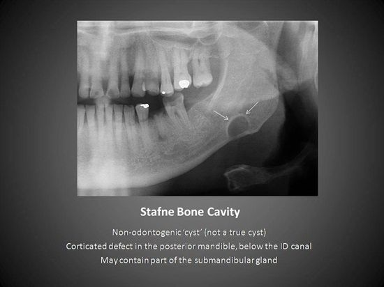 The Stafne bone cavity is a depression of the mandible on the lingual surface created by ectopic sal