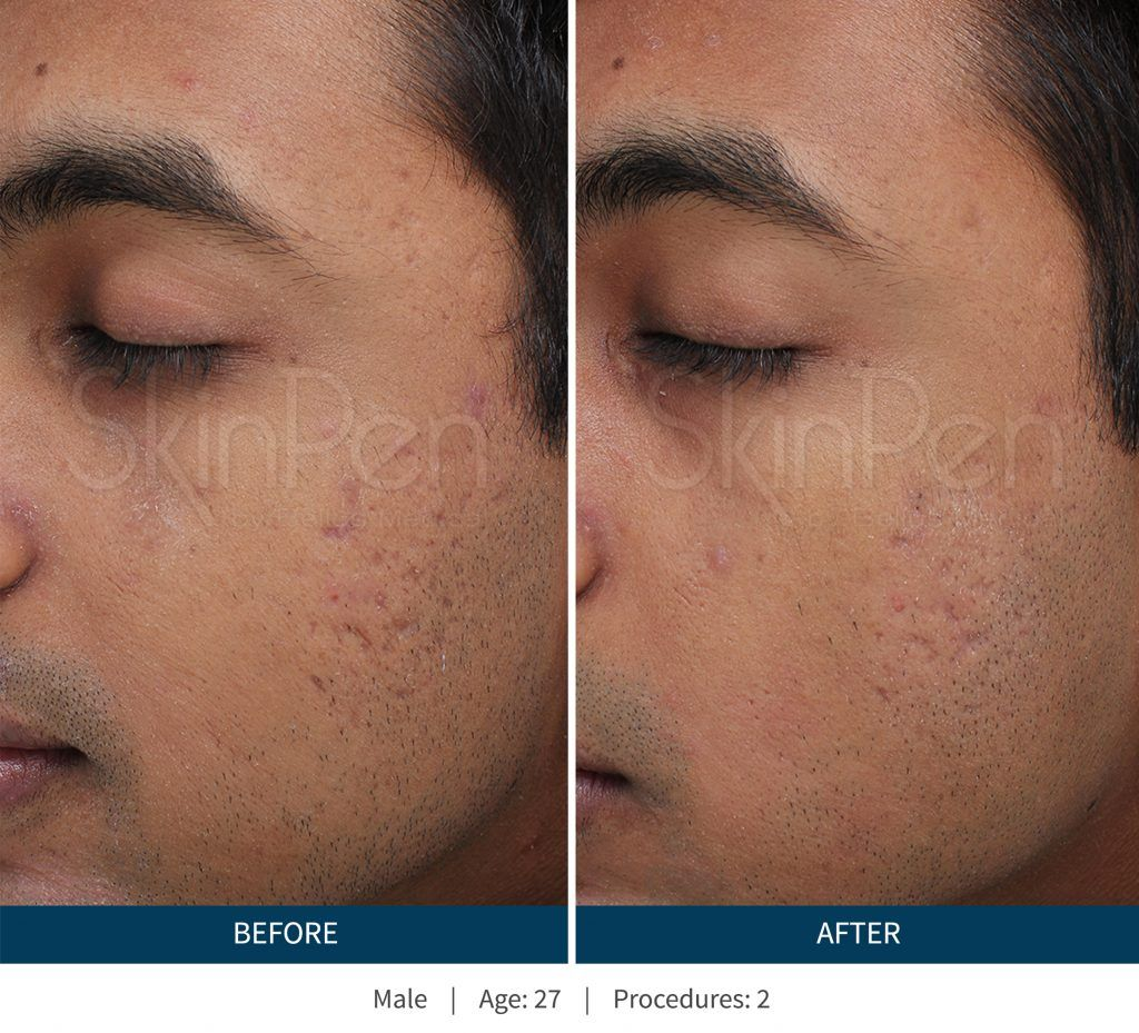 Pin on Dermaplaning