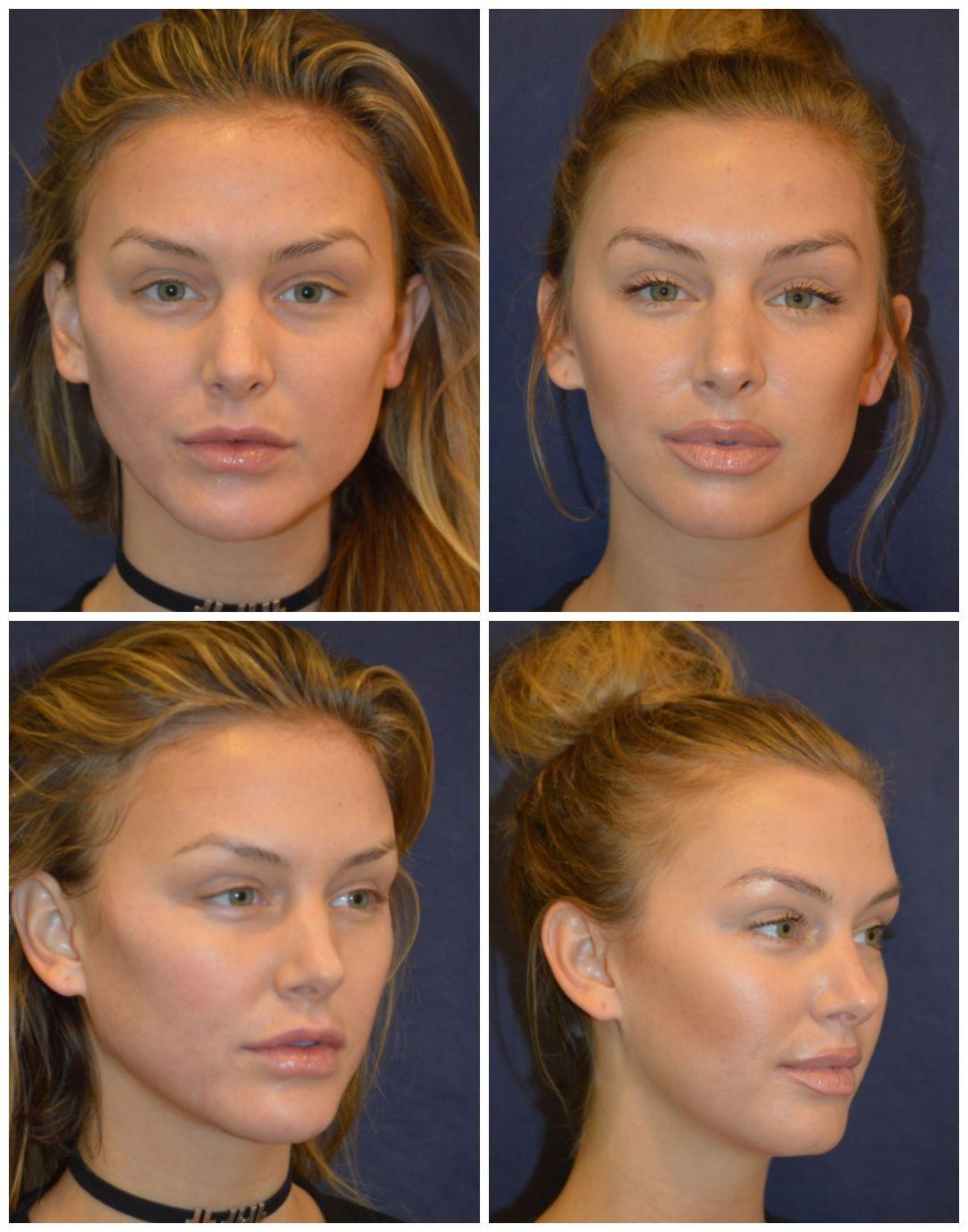 Vanderpump Rules Lala Kent Tells All On Recent Cosmetic