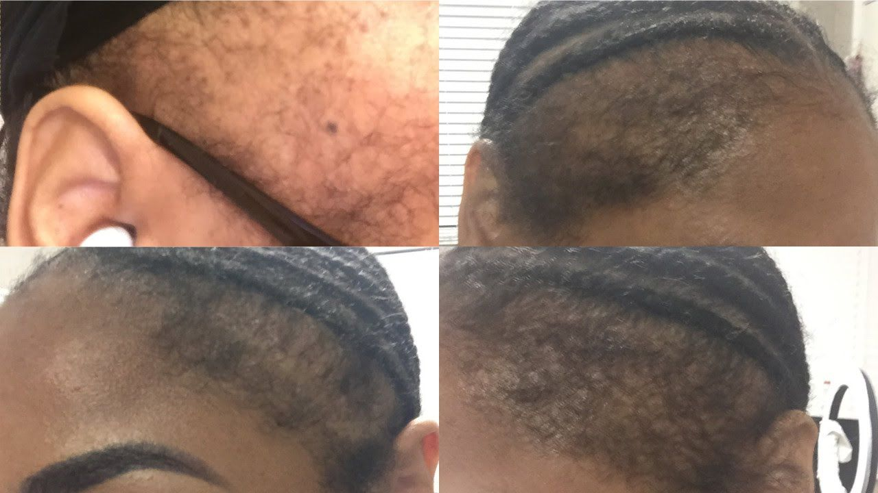 How I Grew My Edges Back Before & After Healthy Hair