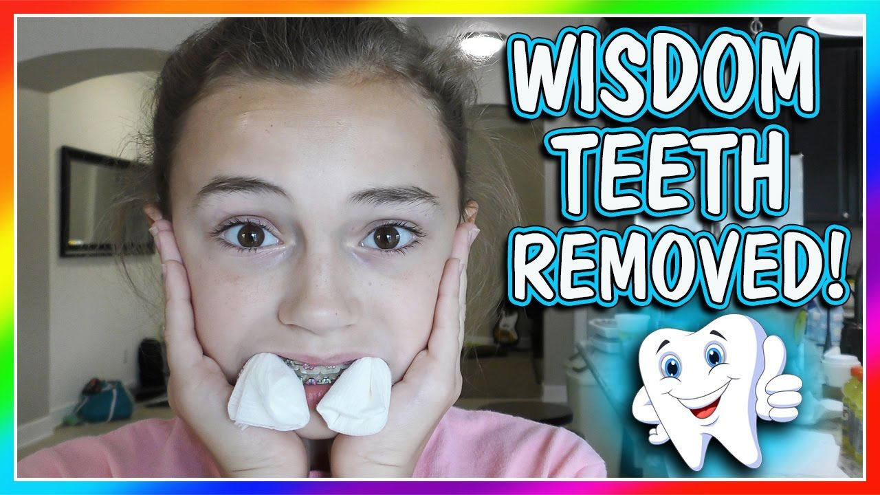 KAYLA GETS HER WISDOM TEETH PULLED! DOES ORAL SURGERY