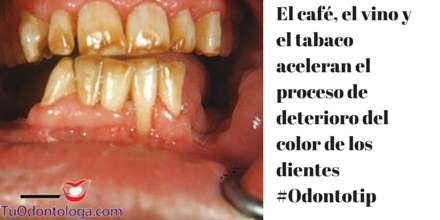 El café, el tabaco y las sodas aceleran el proceso de deterioro del color de los dientes #Odontotip