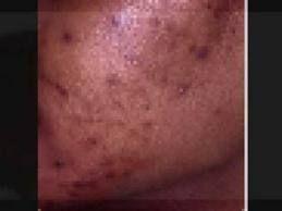 Skin Discoloration In African American Skin African American Skin Care American Skin Skin Care Dark Spots