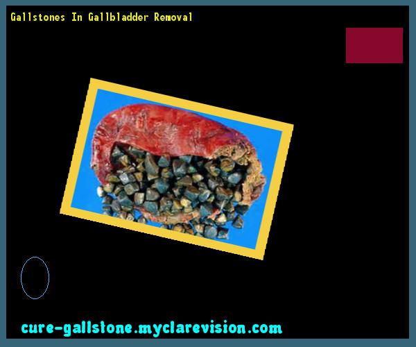 Gallstones In Gallbladder Removal 145205 - Cure Gallstone