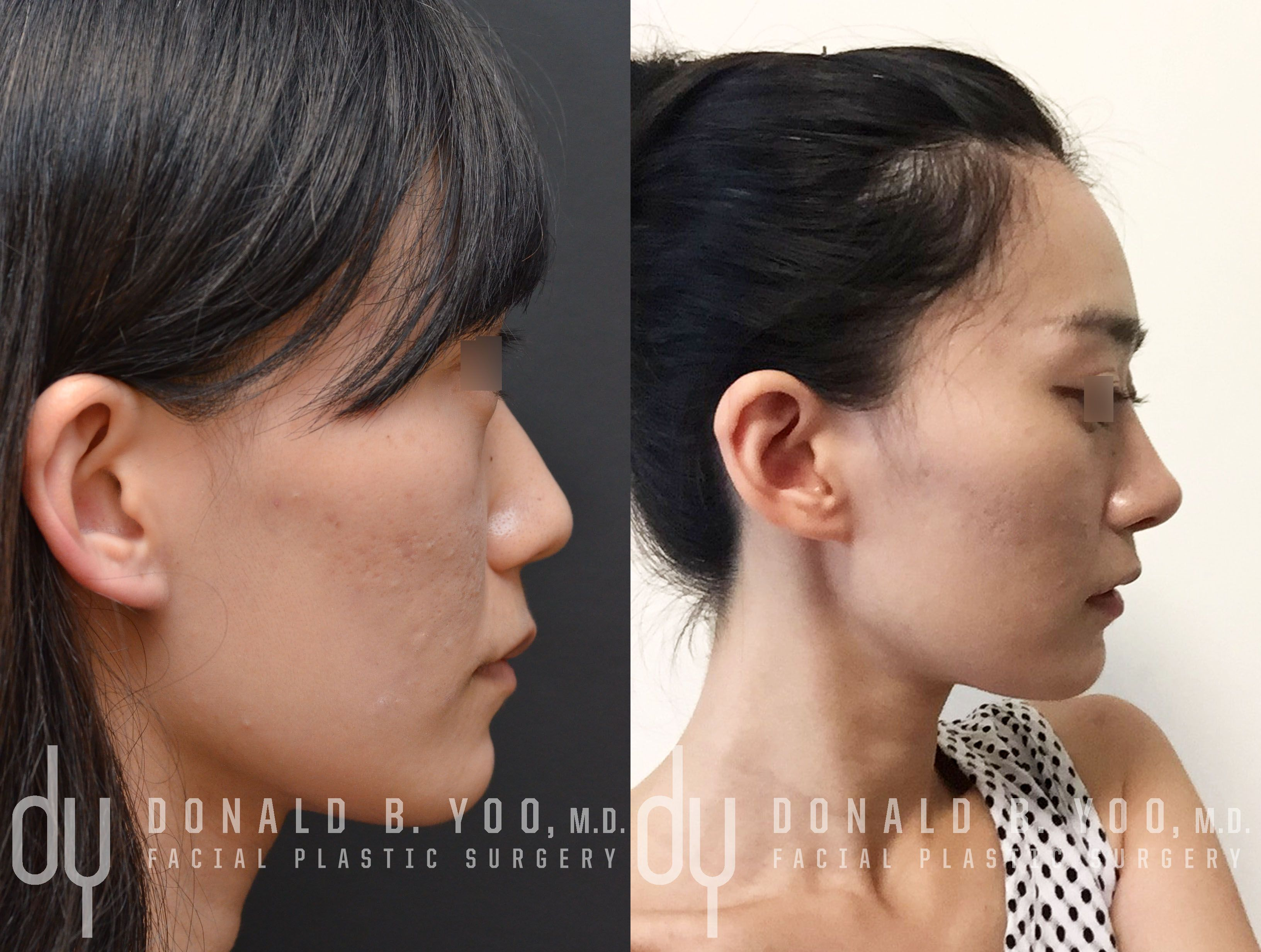 Before And After Primary Asian Rhinoplasty The Patient Underwent Rib Cartilage Harvest Diced Cartilage Fasc Facial Plastic Surgery Rhinoplasty Facial Plastic