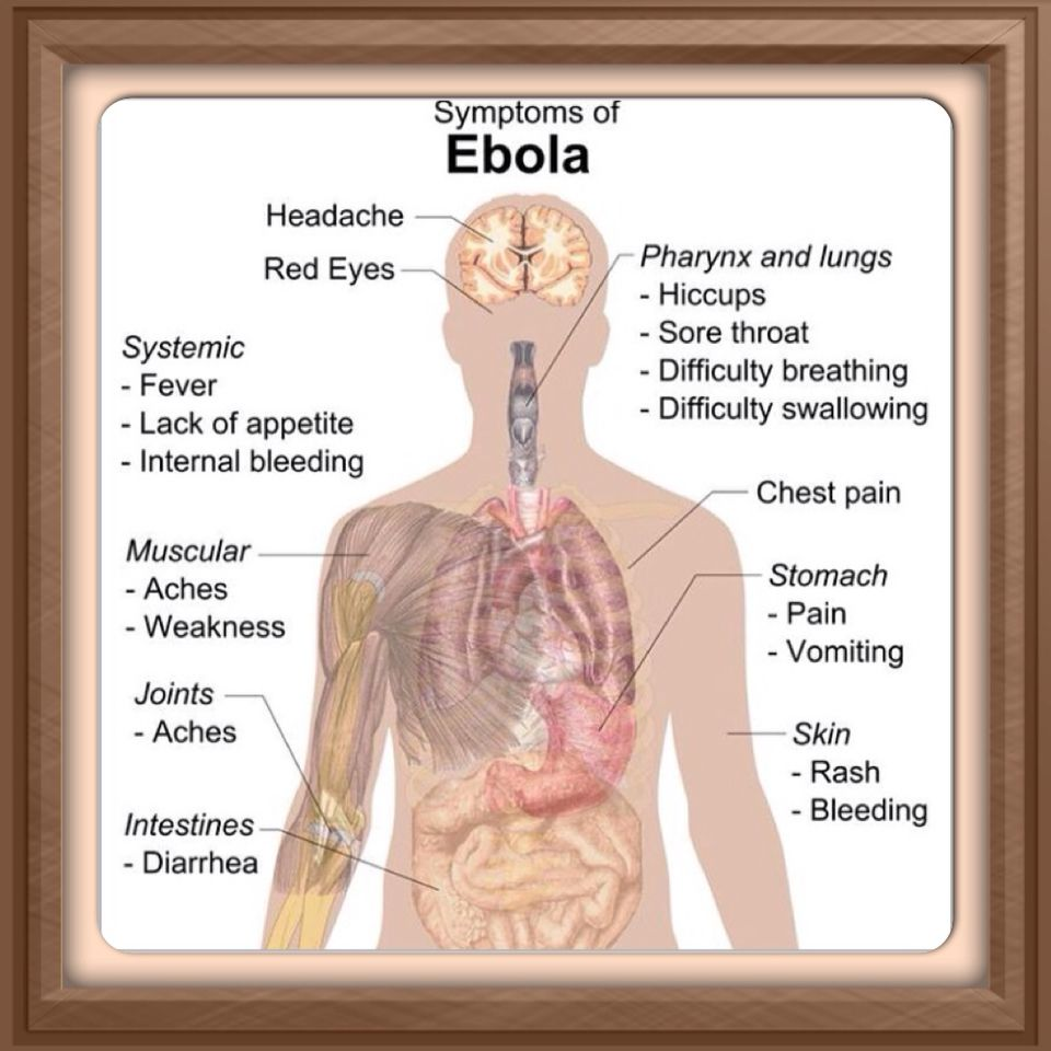 The U.S. Government applied for a patent on the Ebola virus a few years  ago. It's not working out well. Photo: Wikipedia Commons ...