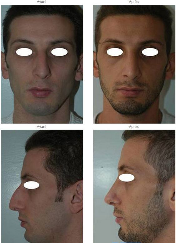 Pin En Rhinoplastie Ou Chirurgie Du Nez