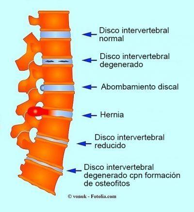 Resultado de imagen para nervio ciatico | GRAFICOS DE ANATOMIA ...