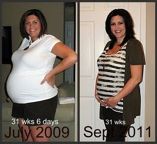 Why have i lost weight while pregnant