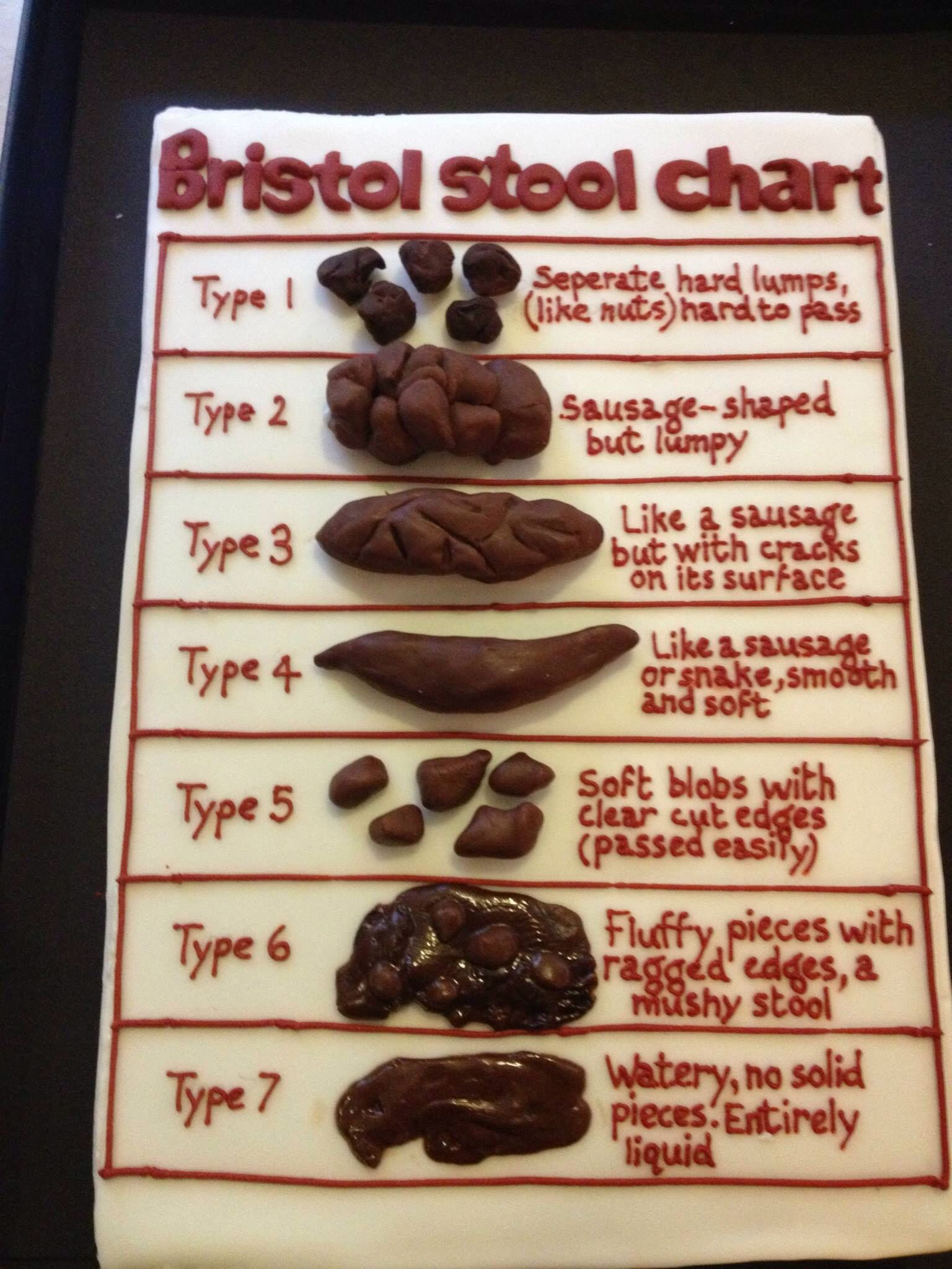 Bristol Stool Chart Chocolate Cake