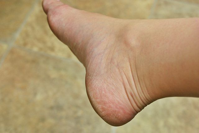 How To Remove Hard Skin From Feet Hard Skin On Feet Dry Skin Coconut Oil For Skin