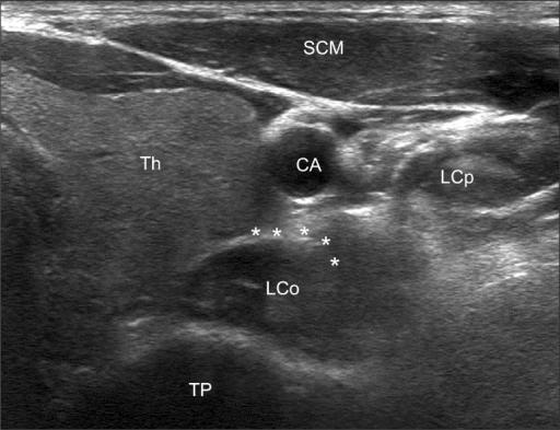 longus colli ultrasound wwwpixsharkcom images