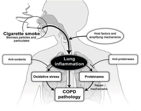 Pin by Connie McGee on Nursing (COPD, Emphysema ...