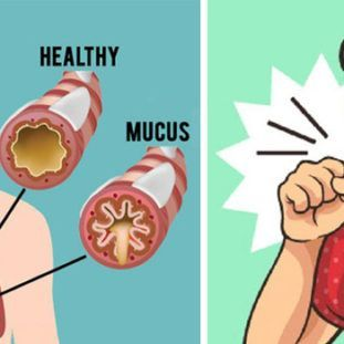 what causes a buildup of mucus in the throat