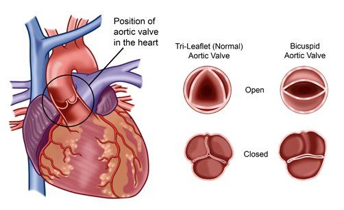 heart healthy diet for bicuspid aortic valve