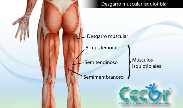 Centro Colimense de Rehabilitación - Desgarro de músculos ...