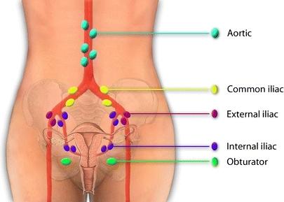 Common Iliac Nodes Google Search Lymph System
