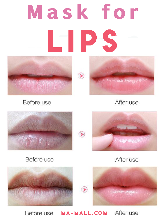 How To Get Rid Of Skin Tag On Lip