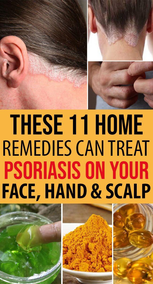 plaque psoriasis scalp natural remedies