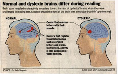 Dyslexic people show an abnormal pattern of brain function when ...