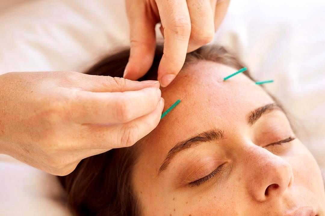 Facial acupuncture procedure acupuncture face lift pinterest acupuncture facelift is based on the traditional practice of acupuncture this treatment is based on the medical theories that are taught in the acupuncture solutioingenieria Choice Image