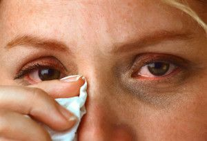 A Comprehensive Study Of Allergies And Fatigue Allergy Eyes Eye Wash Solution Eczema Causes
