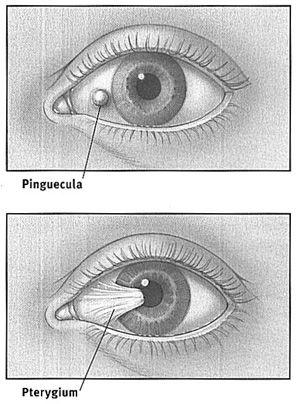 Pinguecula treatment yahoo dating