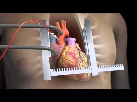 Sternotomy Open Heart Surgery 3d Animation Youtube Open