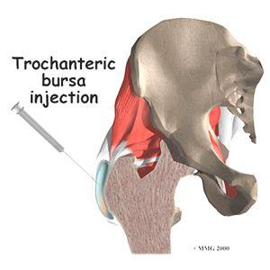 Bursitis | Nursing | Bursitis hip, Cortisone injection
