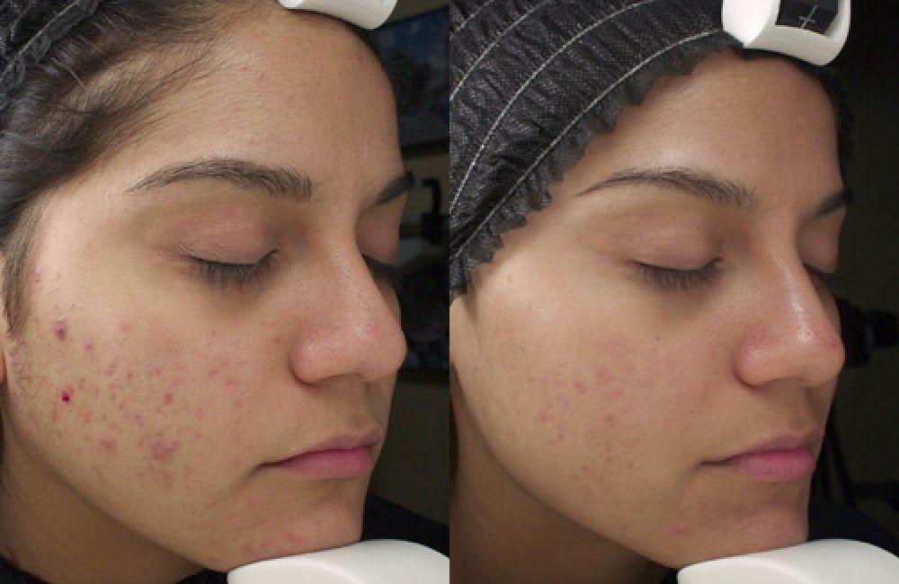 Kadının Yeri: Kimyasal Peeling http://www.kadininyeri.org/2014/12/kimyasal-peeling.html