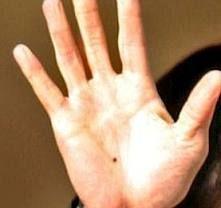 Mole (Til) on Hand - INDIAN PALM READING | Palmistry Palm ...